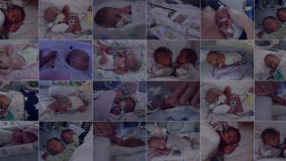 Shining a spotlight on premature birth